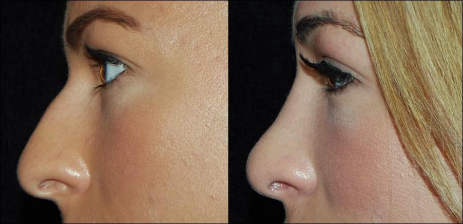Nase plastische Chirurgie - Nasenkorrektur