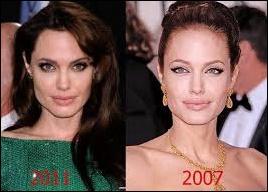Angelina Jolie Gesicht Plastische Chirurgie vor und nach der Nase Job