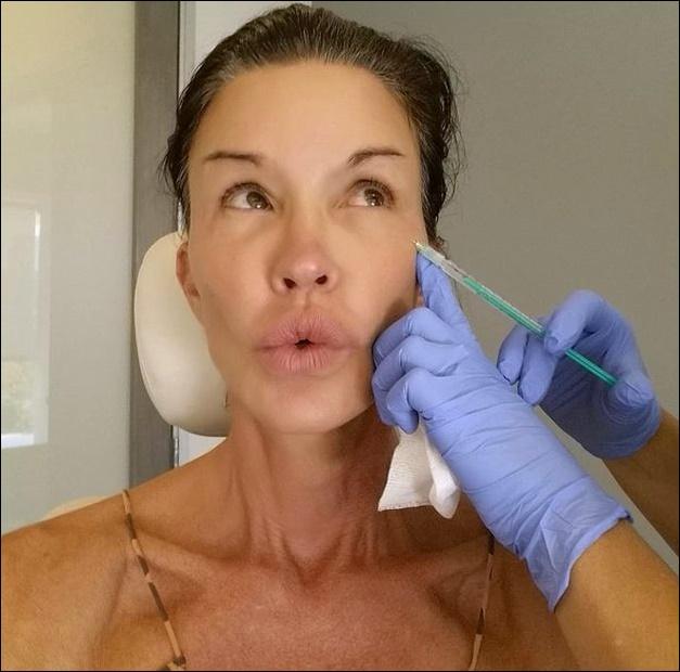Janice Dickinson Leben mit plastischer Chirurgie