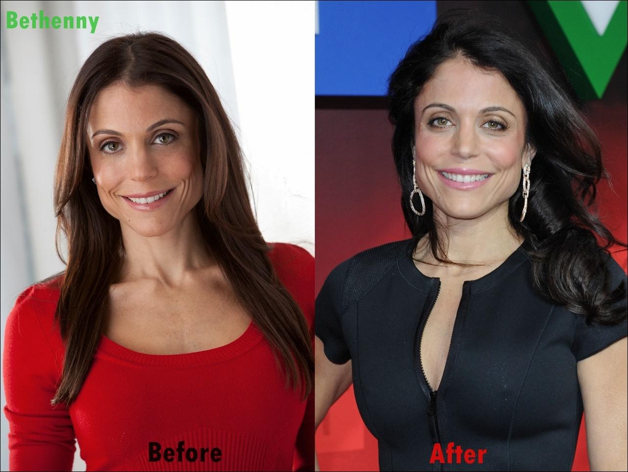 Bethenny Frankel Plastische Chirurgie Gesicht vor und nach Fotos