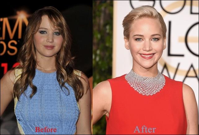 Jennifer Lawrence Plastische Chirurgie vor und nach dem Gesicht