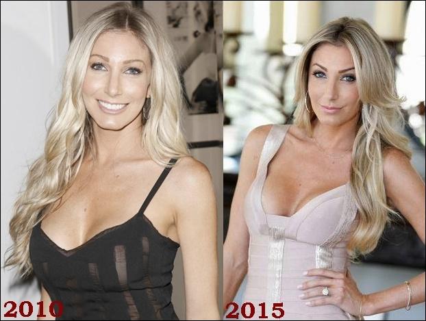 Heather Bilyeu Plastische Chirurgie vor und nach Gesicht Fotos