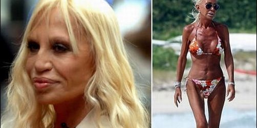 Donatella Versace Plastische Chirurgie Nasenoperation, Face Lift, Lip Augmentation
