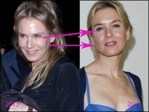 Renee Zellweger Plastische Chirurgie Vorher Nachher Fotos