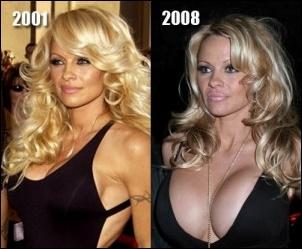 Pamela Anderson Plastische Chirurgie vor und nach Fotos