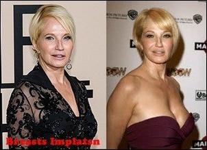 Ellen Barkin Plastische Chirurgie Vorher-Nachher Bilder