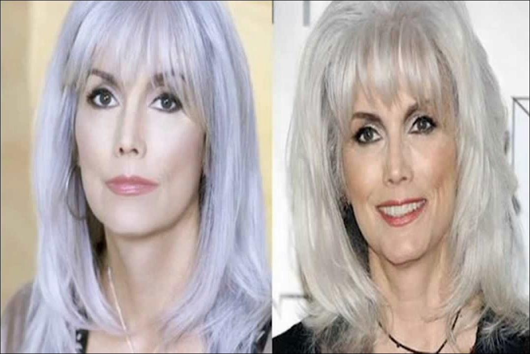 Emmylou Harris Plastische Chirurgie vor und nach Botox, Nase Job Gerüchte