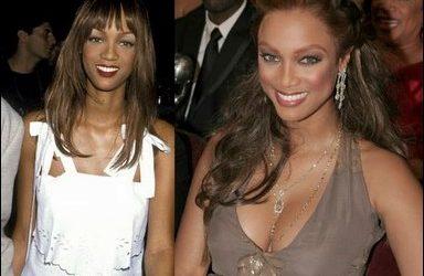 Tyra Banks vor und nach der plastischen Chirurgie