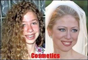 Chelsea Clinton Plastische Chirurgie vor und nach Bildern