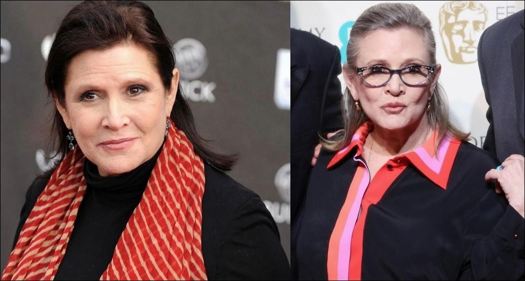 Carrie Fisher Plastische Chirurgie vor und nach der Kosmetik Bilder