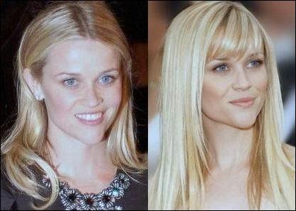 Reese Witherspoon Plastische Chirurgie vor und nach Gesicht Fotos