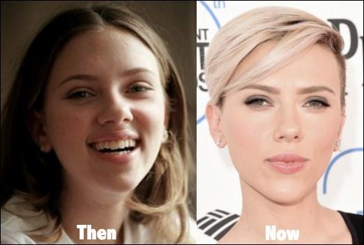 Hollywood Schauspielerinnen, die Nase Job haben