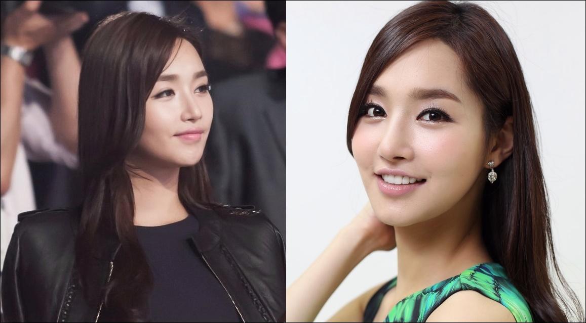 Kim Yoo Mi Plastische Chirurgie vor und nach Miss Korea Fotos