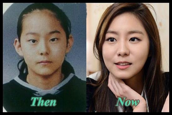 Uee plastische Chirurgie vor und nach Augenlid, Kosmetik Fotos