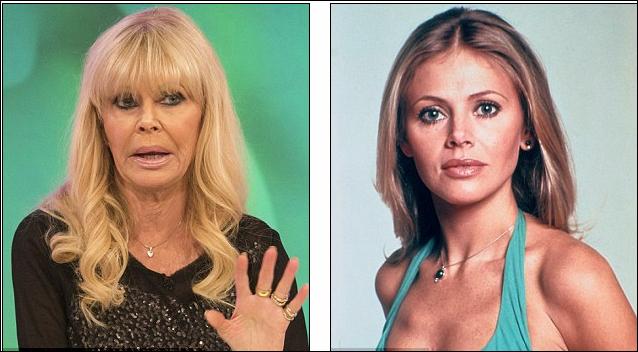 Britt Ekland enthüllt plastische Chirurgie vor und nach Fotos