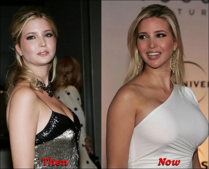 Ivanka Trump Plastische Chirurgie vor und nach Fotos