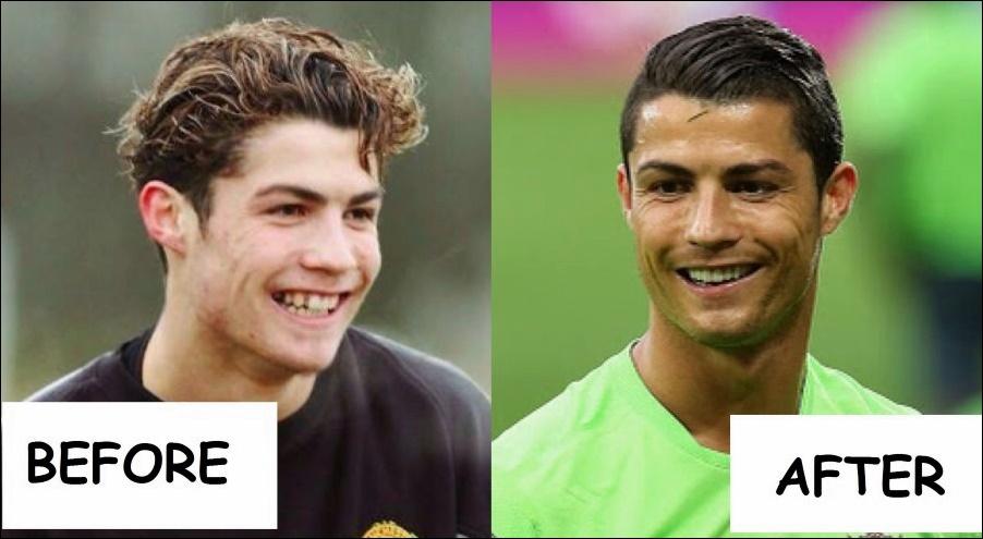 Ronaldo Zähne