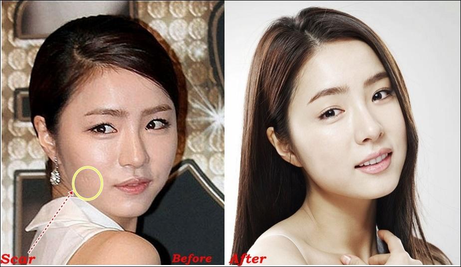 Shin Se Kyung Plastische Chirurgie Vorher und Nachher Gerücht Bilder