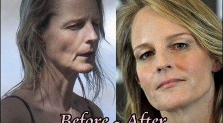 Hatte Helen Hunt plastische Chirurgie?