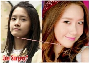 Mädchen Generation SNSD Plastische Chirurgie vor und nach