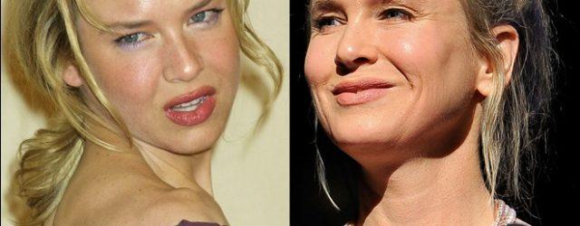 Renee Zellweger Plastische Chirurgie Gerüchte wahr?