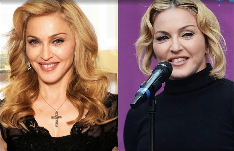 Madonna Plastische Chirurgie vor und nach Gesicht Fotos