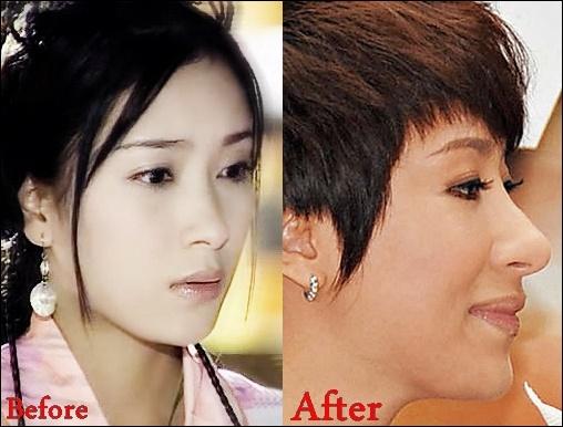 Tavia Yeung plastische Chirurgie Gerüchte vor und nach Fotos