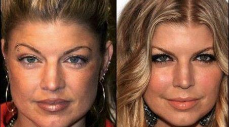 Fergie Plastische Chirurgie: Nose Job, Brustvergrößerung und Facelift
