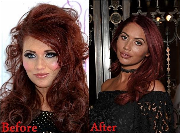 Amy Childs Cosmetics Plastische Chirurgie vor und nach Lip Füller Fotos
