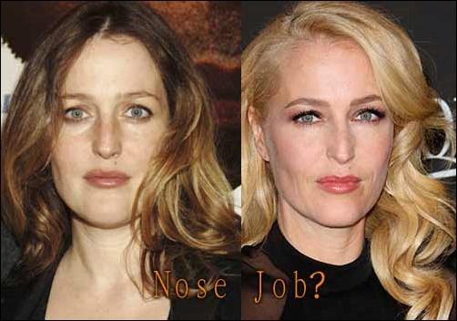 Gillian Anderson Nase Job Plastische Chirurgie vor und nach