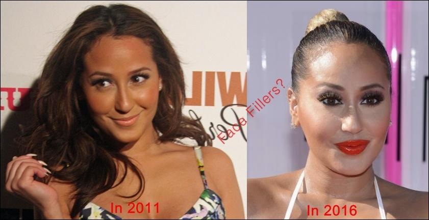 Adrienne Bailon Gesichtschirurgie vor und nach Fotos