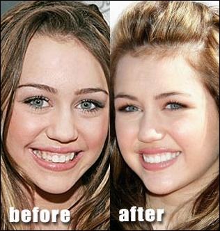 Miley Cyrus Nase Job Plastische Chirurgie vor und nach Fotos
