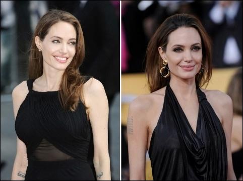 Angelina Jolie Doppel-Mastektomie Chirurgie vor und nach den Bildern