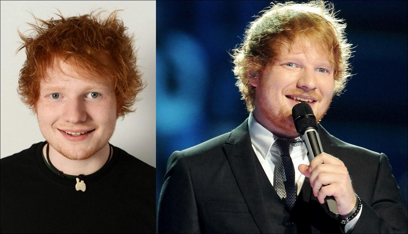 Ed Sheeran Plastische Chirurgie vor und nach Gesicht Fotos