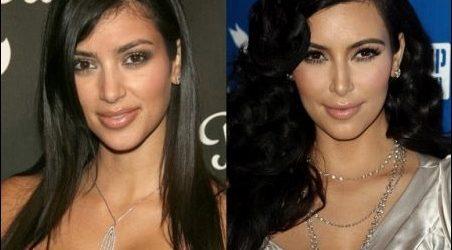 Kim Kardashian Nase Job - gute oder schlechte Nase Job?