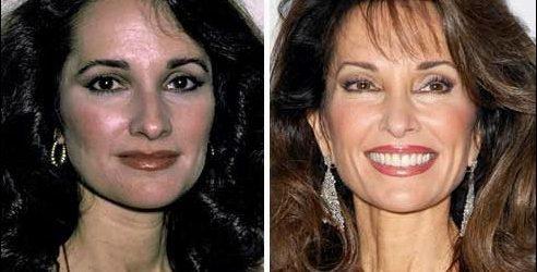 Susan Lucci Plastische Chirurgie - Ein kompletter Übergang zur Hinreißenden Schönheit
