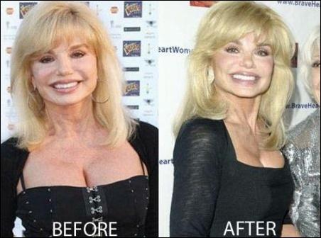 Loni Anderson plastische Chirurgie vor und nach