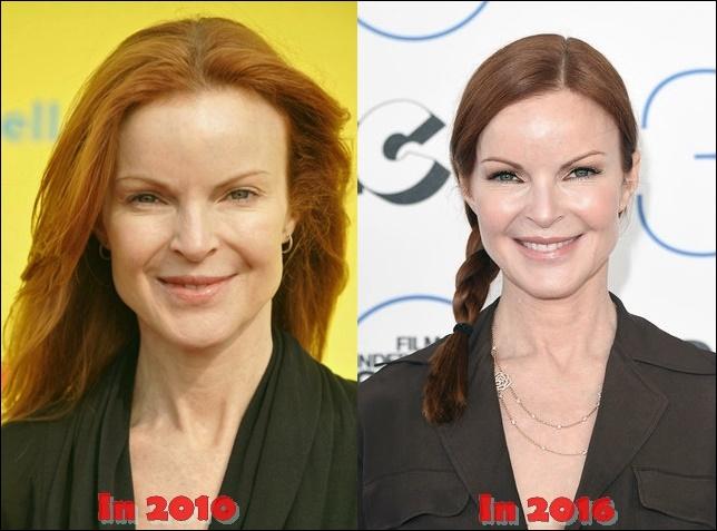 Marcia Cross Plastische Chirurgie vor und nach Kosmetik Fotos