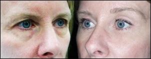 Obere Augenlid-Blepharoplastik vor und nach den Bildern