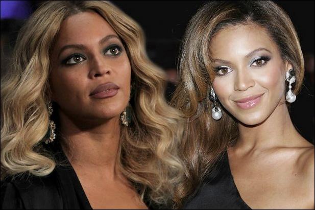 Beyonce Nase Job Plastische Chirurgie vor und nach Fotos