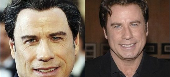 John Travolta Plastische Chirurgie vor und nach Gesicht Fotos