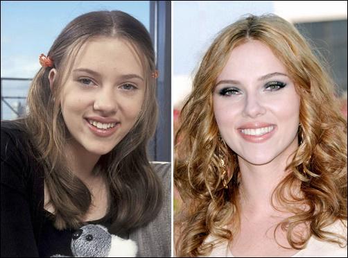 Scarlett Johansson Plastische Chirurgie Vorher und Nachher