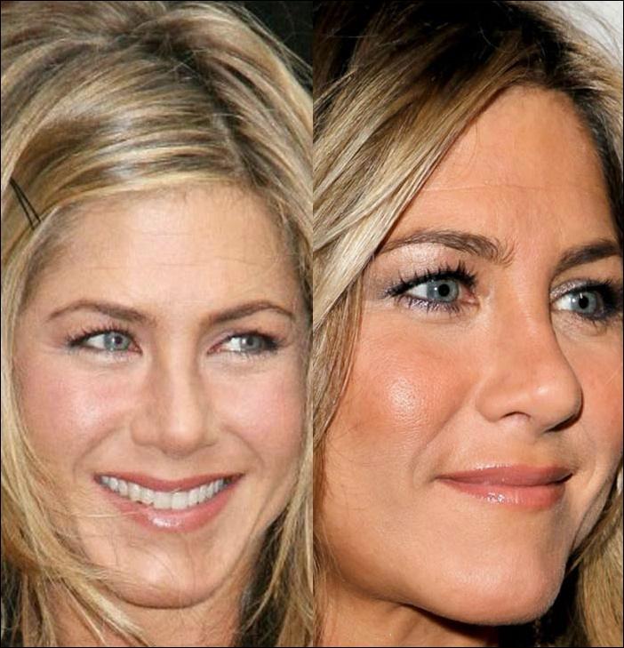 Jennifer Aniston Plastische Chirurgie vor und nach Fotos