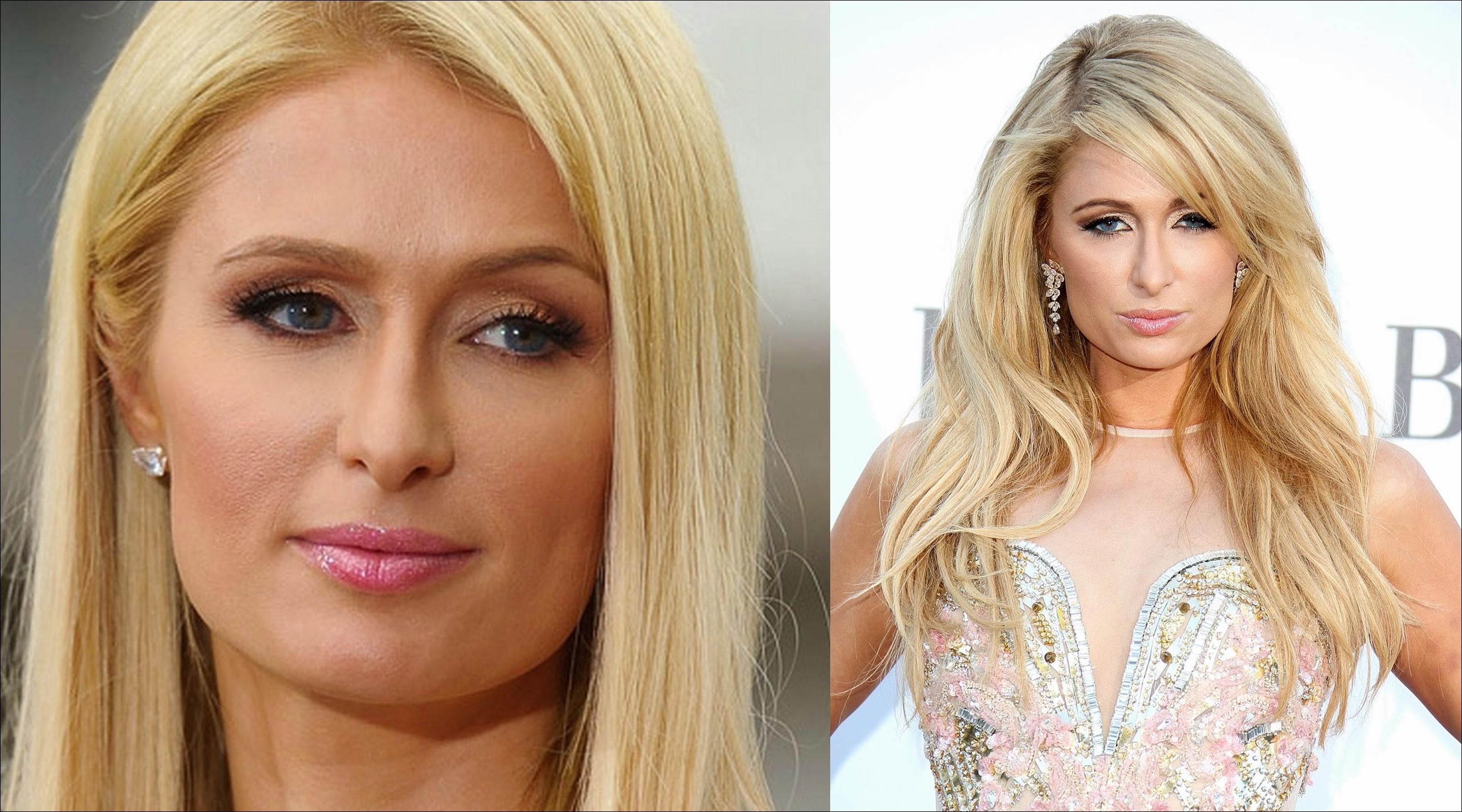 Paris Hilton Nase Job Plastische Chirurgie vor und nach Nasenkorrektur Fotos