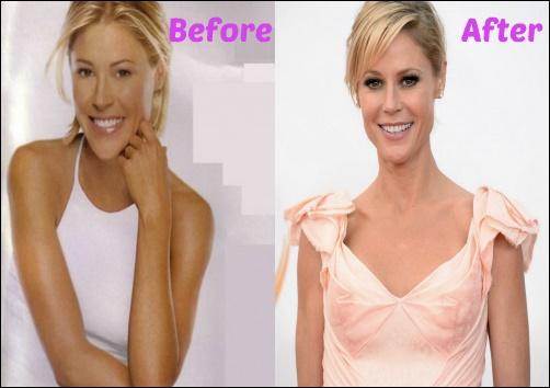 Julie Bowen Fraxel Kosmetische Chirurgie vor und nach der Nase Job