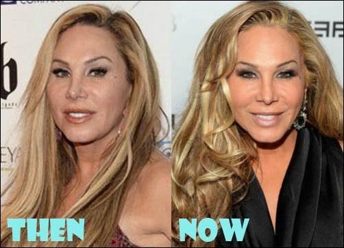 Adrienne Maloof vor und nach der plastischen Chirurgie