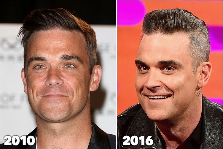 Robbie Williams Plastische Chirurgie vor und nach Botox Füller Fotos