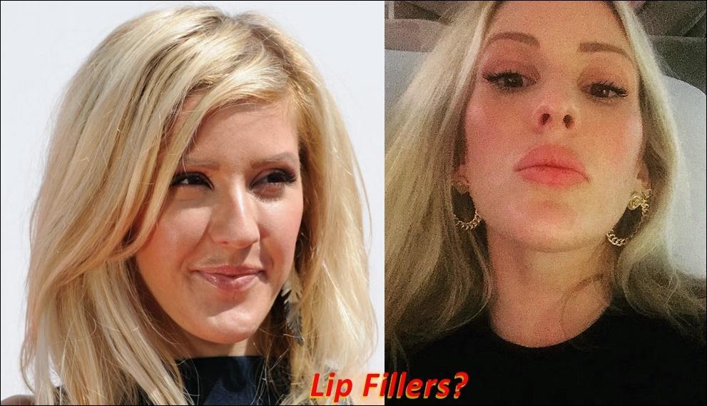 Ellie Goulding Plastische Chirurgie vor und nach Boob Job, Lip Filler, Nase Job