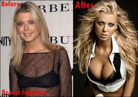 Tara Reid Brustimplantate Plastische Chirurgie vor und nach Titten Job-Fotos