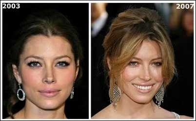 Jessica Biel Nose Job - Der neue Look